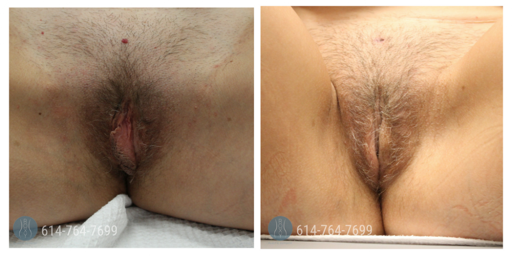 Age 41: 2 Weeks Post-Op Labiaplasty with Wedge Method