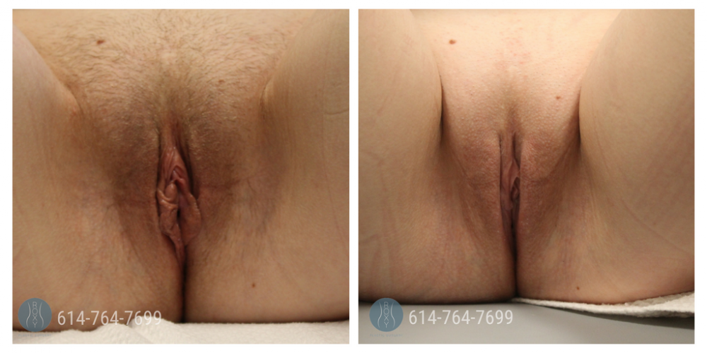 Age 27: 4 Weeks Post-Op Labiaplasty, Wedge Method with Clitoral Hood Reduction