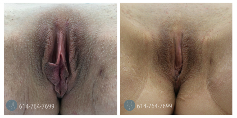 Age 35: 2 Weeks Post-Op Labiaplasty, Trim Method with Clitoral Hood Reduction