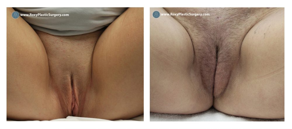 Age 18+: 2 weeks post-op labiaplasty and fat grafting to labia majora