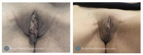 Age 34: 6 Weeks Post-Op Labiaplasty, Trim Method