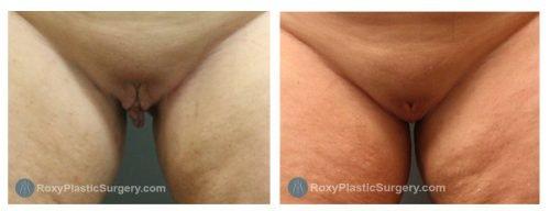Age 41: 6 Weeks Post-Op Labiaplasty, Trim Method