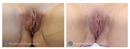Age 39: 1 Month Post-Op Labiaplasty, Trim Method