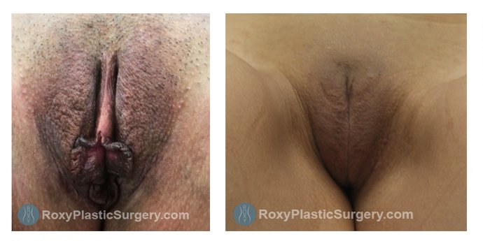 Age 33: 3 Months Post-Op Labiaplasty, Trim Method with Clitoral Hood Reduction