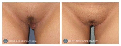 Age 29, 6 Weeks Post-Op Labiaplasty, Trim Method