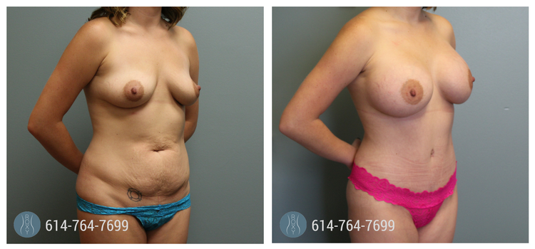 Mommy Makeover with Gummy Bear Implants, Pre-Op & 3 Months Post-Op