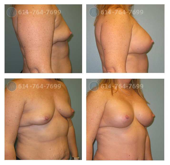 Age: 44 - Before Cup: 38A - After Cup: 38C - Post Op Photo: 3 mo - Implant Size: 475cc Silicone - Height/Weight: 5'3″/165 lbs