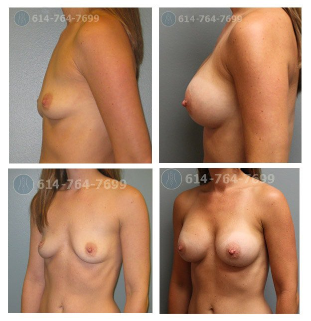 Age: 33 - Before Cup: 34A - After Cup: 34C/32DD - Post Op Photo: 6mo - Implant Size: 300 cc Silicone - Height/Weight: 5'1″/100 lbs