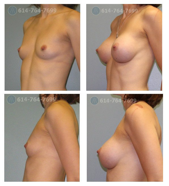 Age: 39 - Before Cup: 34AA - After Cup: 34C - Post Op Photo: 4 mo - Implant Size: 325 cc Silicone - Height/Weight: 5'6″/112 lbs
