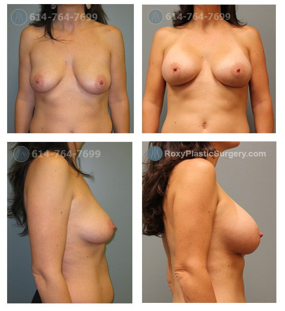Age: 38 - Before Cup: 36C - After Cup: 36D - Post Op Photo: 3 mo - Implant Size: 450 cc Silicone - Height/Weight: 6'0″/150 lbs.