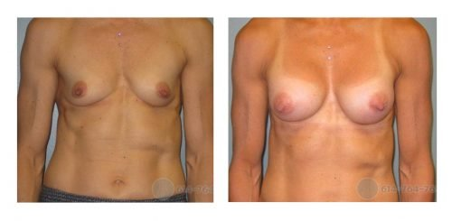 Age: 51 -  Before Cup: 32AA - After Cup: 32B - Post Op Photo: 6 weeks - Implant Size: 300 cc Silicone - Height/Weight: 5'6″/130 lbs
