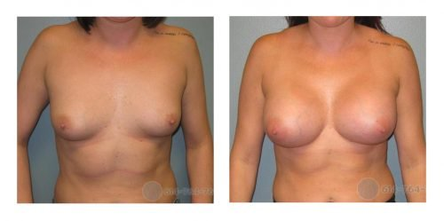 Age: 27 - Before Cup: 36B - After Cup: 36DD - Post Op Photo: 6 wks - Implant Size: 425 R 450 L Silicone - Height/Weight: 5'4″/145 lbs