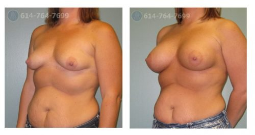 Age: 33 - Before Cup: 34B - After Cup: 34D - Post Op Photo: 6 mo Implant Size: 450 cc Silicone - Height/Weight: 5'6″/160 lbs