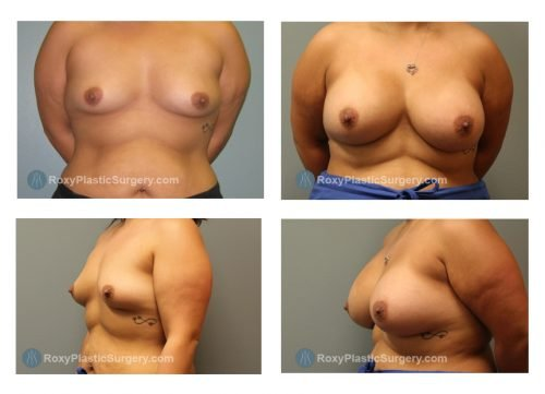 Age: 28 - Before Cup: 36 A - After Cup: 38 D - Post Op Photo: 6 mo - Implant Size: Silicone 500 cc - Weight: 174 lbs