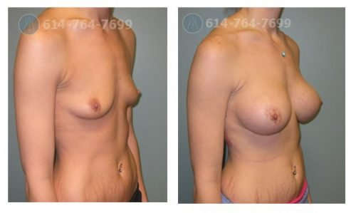 Age: 27 - Before Cup: 34B - After Cup: 34C - Post Op Photo: 7 mo - Implant Size: 425 cc Silicone - Height/Weight: 5'6″/130 lbs