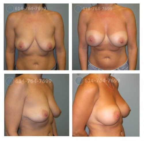 Before Cup: 34A - After Cup: 34DD - Post op Photo: 12 wks - Implant Size: 375 R 300 L Silicone - Height/Weight: 5′ 2″/118 lb