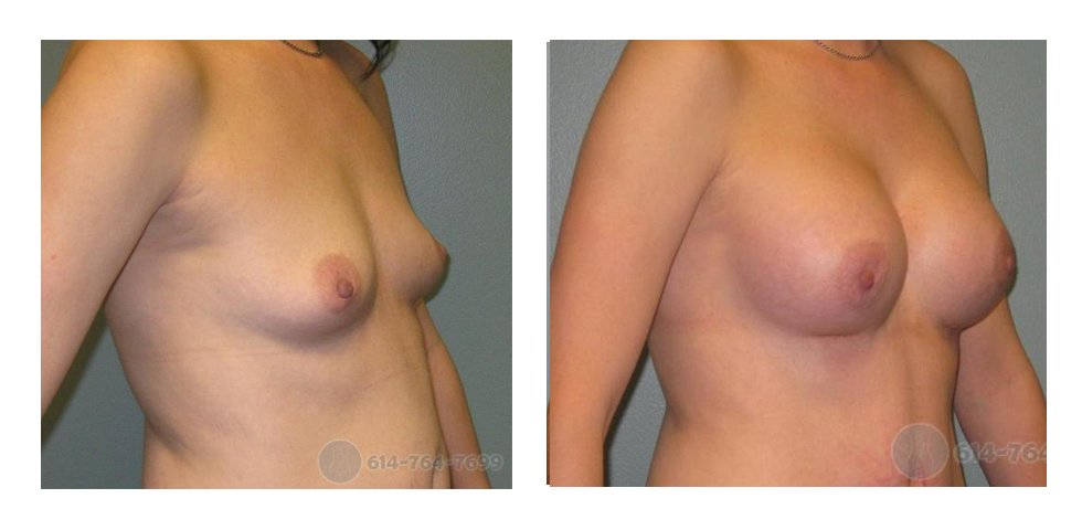 Age: 32 - Before Cup: 32B - After Cup: 32C - Post Op Photo: 6 wk - Implant Size: 425 R 400 L Silicone - Height/Weight: 5'7″/140 lbs