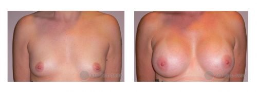 Age: 38 - Before Cup: 32A - After Cup: 32C - Post Op Photo: 12 wks - Implant Size: 300 cc Silicone - Height/Weight: 5'5″/107 lbs