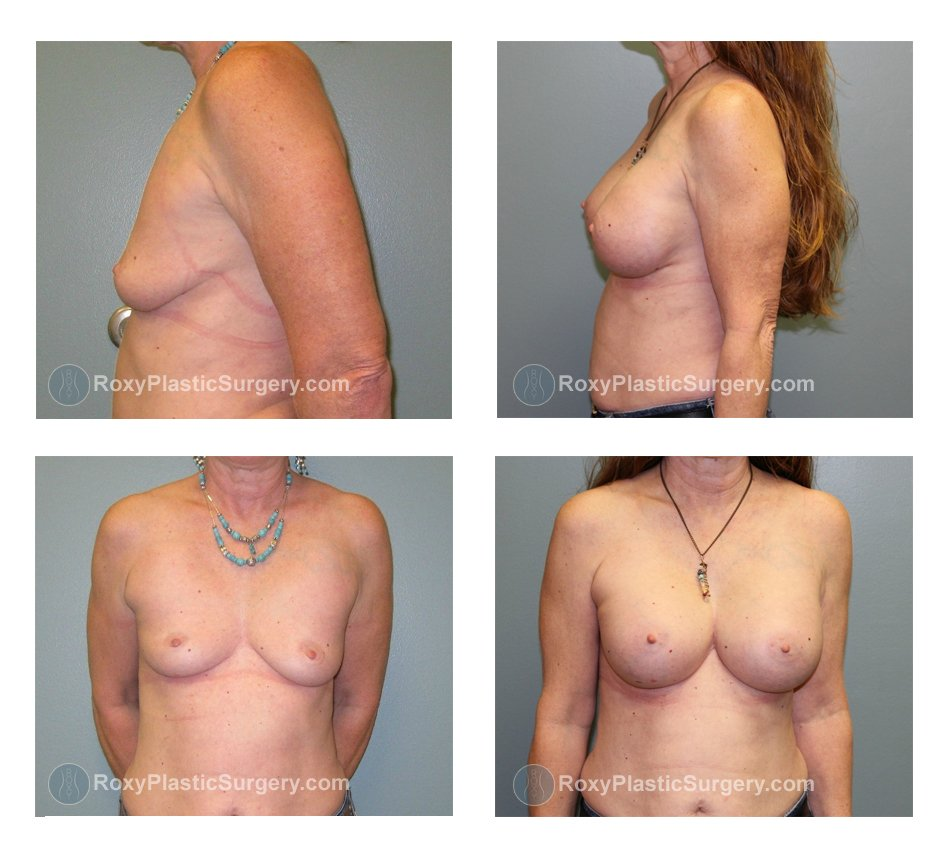 Age: 55 - Pre-op size: 32 B - Post-op size: 32DDD - Implant Size: 450cc Silicone - Height/Weight: 5'1″, 112lbs