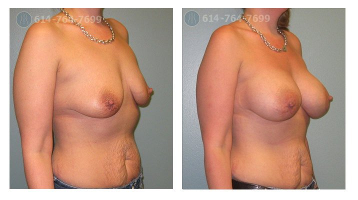 Age: 35 - Before Cup: 34A - After Cup: 34D - Post Op Photo: 5 mo - Implant Size: 400 cc Silicone - Height/Weight: 5'4″/136 lbs