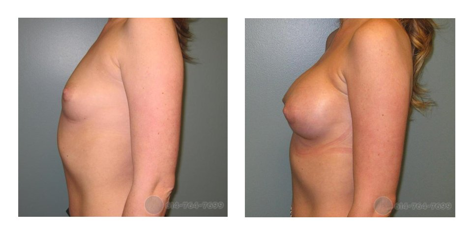 Age: 30 - Before Cup: 34B - After Cup: 32C - Post op Photo: 6 wks - Implant Size: 325 cc Silicone - Height/Weight: 5'9″/140 lbs