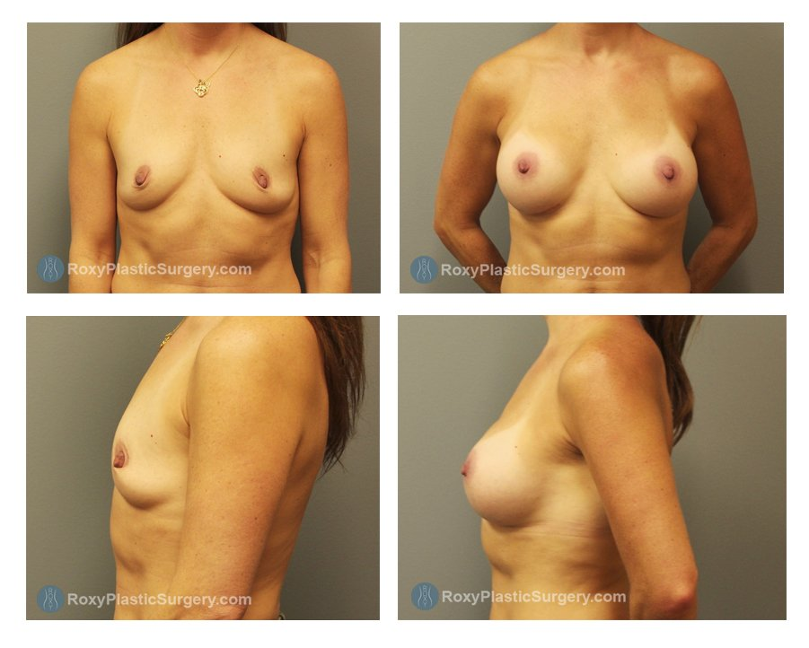 Age: 42 - Before Cup: 34B - After Cup: 34C - Post Op Photo: 6 mo - Implant Size: Silicone 375 cc Style 20 - Weight: 125 lbs