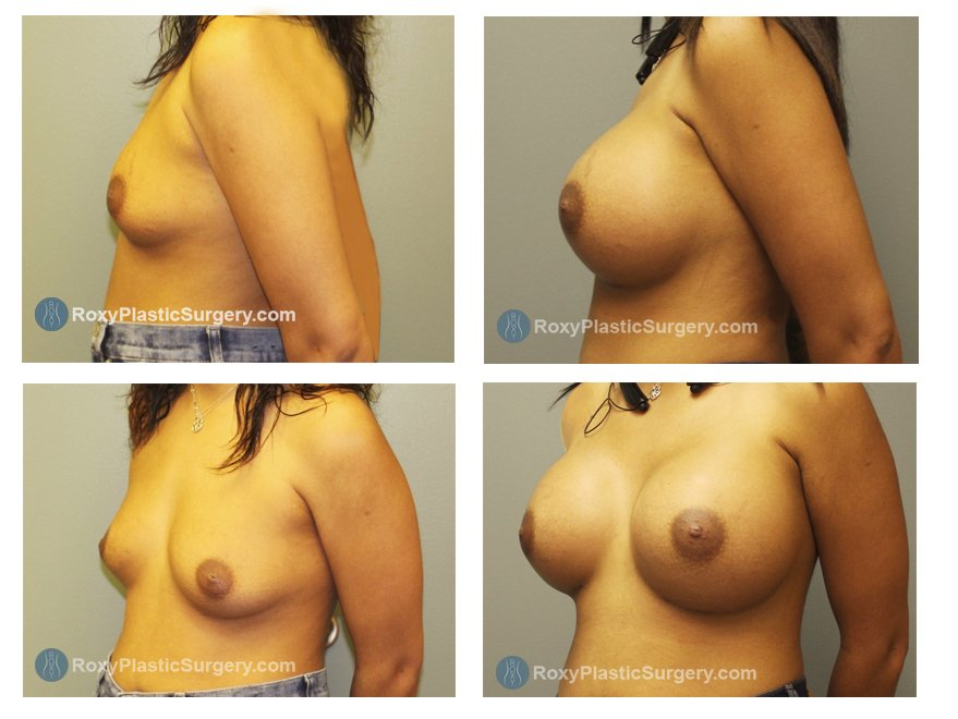 Age: 32 - Before Cup: 36 C - After Cup: 36 DD - Post Op Photo: 3 mo - Implant Size: Silicone 700 cc Style 20 - Weight: 130 lbs