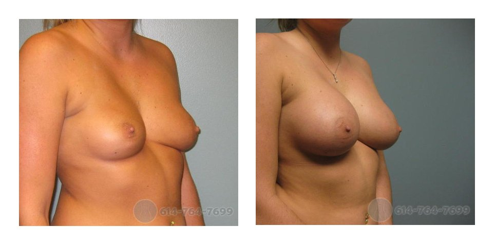 Age: 23 - Before Cup: 34B - After Cup: 34DD - Post Op Photo: 12 wks - Implant Size: 475 R 450 L Silicone - Height/Weight: 5'7″/170