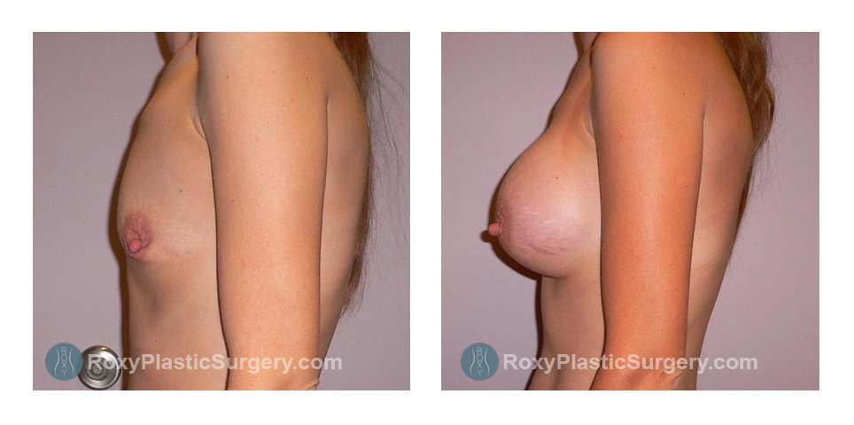 Age: 32 - Before Cup: 32A - After Cup: 32C - Post Op Photo: 12 wks - Implant Size: 300 cc Silicone - Height/Weight: 5'5″/110 lbs.