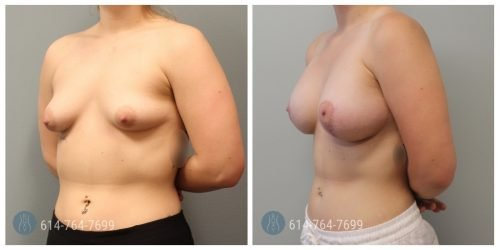 Breast Augmentation Mastopexy for Asymmetry - Post Op Photo: 6 mo - Implant Size: 500cc Silicone