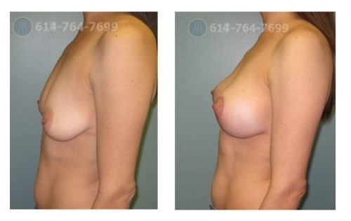 Pre-op and 4 months Breast Augmentation and Lollipop Mastopexy - 250cc Silicone Implants - Before Cup: 34B  After Cup: 34C