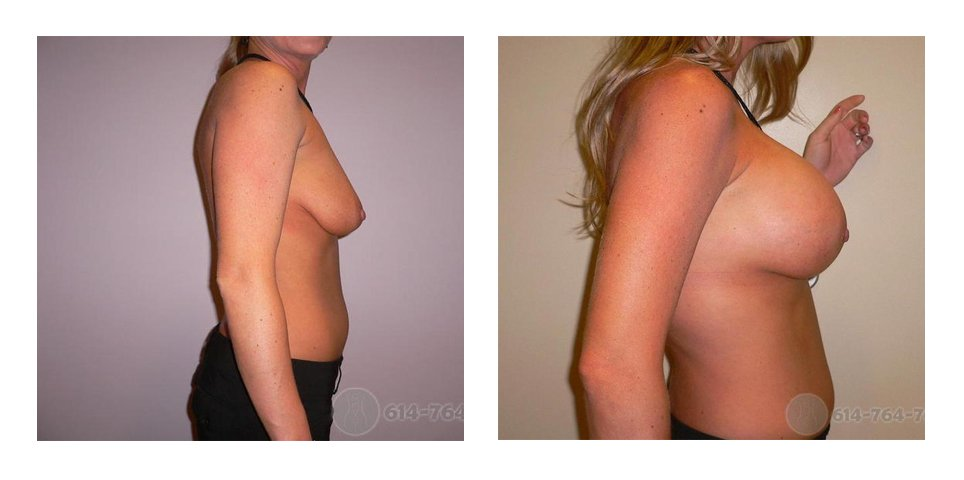 Age: 42 - Before Cup: 34B - After Cup: 34D - Post Op Photo: 6 wks - Implant Size: 450 cc Silicone - Height/Weight: 5′ 8″/142 lbs.