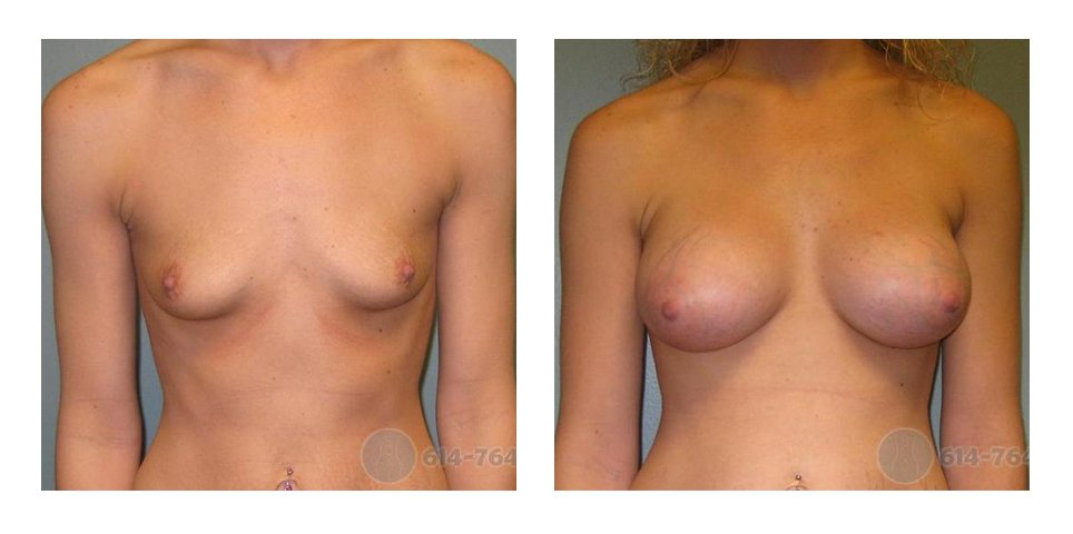 Age: 25 - Before Cup: 34B - After Cup: 34C - Post Op Photo: 8 wks - Implant Size: 425 cc Silicone - Height/Weight: 5'6″/130 lbs