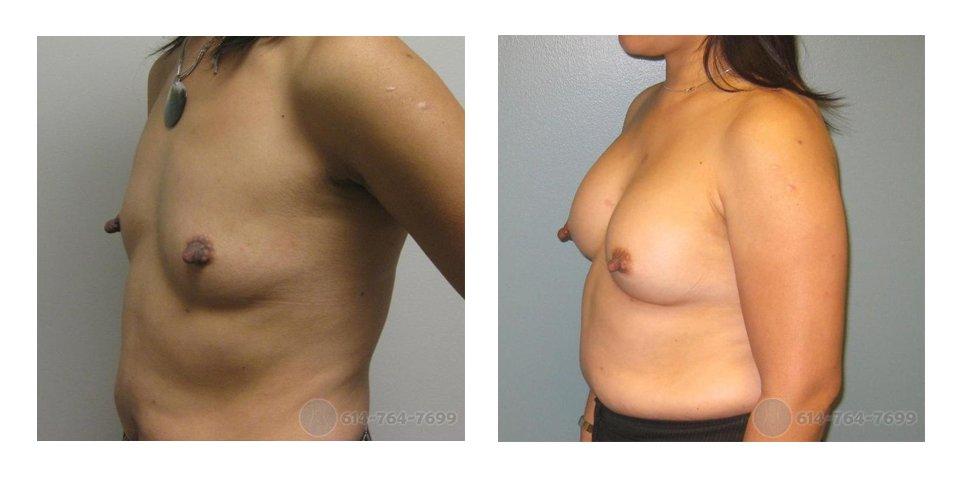 Age: 42 - Before Cup: 34A - After Cup: 34C - Post Op Photo: 9 months - Implant Size: 300 cc Silicone - Height/Weight: 5'1″/127 lbs