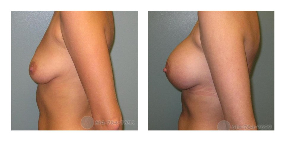 Age: 31 - Before Cup: 34B - After Cup: 34D - Post Op Photo 6 wks - Implant Size: 350 cc Silicone - Height/Weight: 5'5″/110 lbs