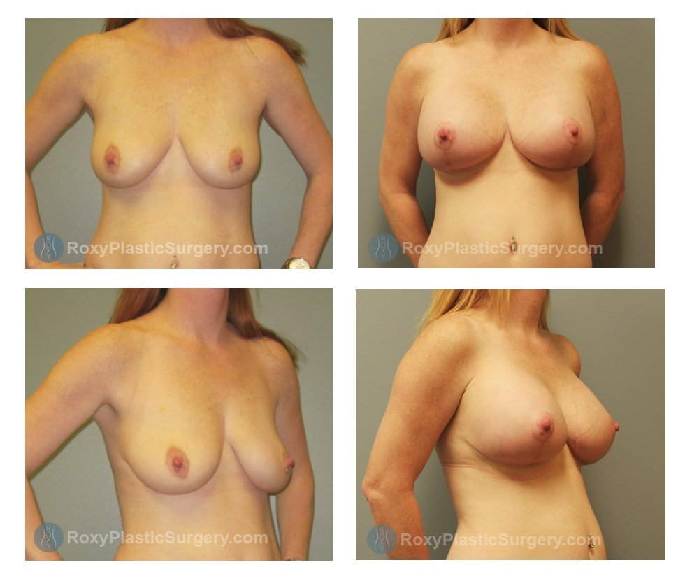 Pre-op and 3 months after Breast Augmentation with Mastopexy  Anchor scar  - 450cc silicone implants