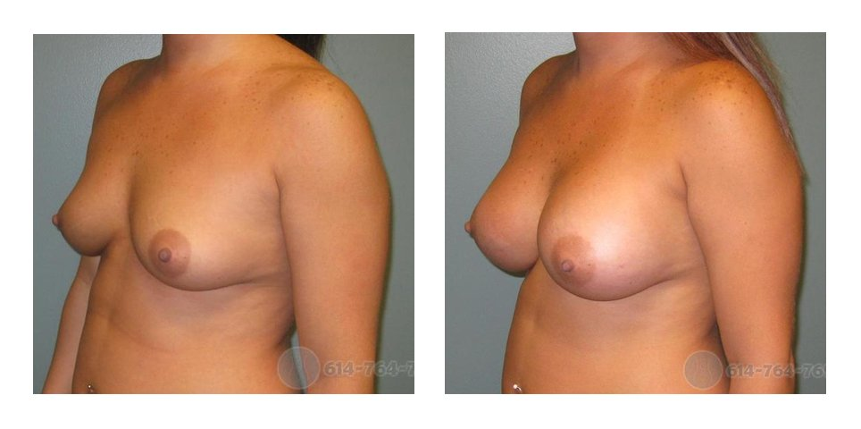 Age: 24 - Before Cup: 36B - After Cup: 36D - Post Op Photo: 6 wks - Implant Size: 400 cc Silicone - Height/Weight: 5'4″/155 lbs