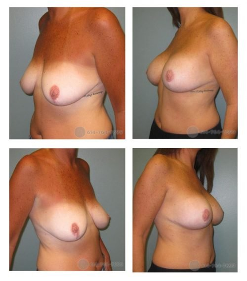 Before and 1.5 years after Augmentation Mastopexy  - She previously had a Wise pattern Mastopexy (Anchor scar) which was revised (redone) along with Silicone Implants for better upper pole fullness. - 250cc Silicone Implants