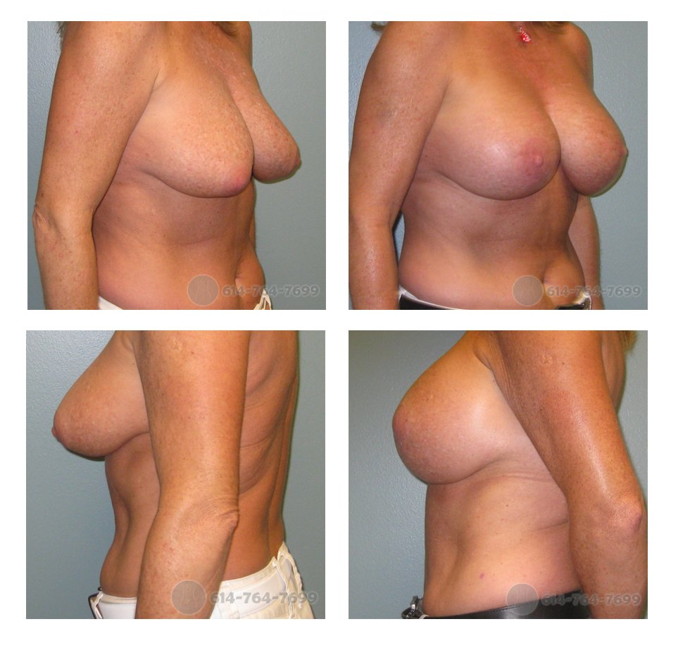Pre-op and 3 months after Breast Augmentation/Mastopexy  Lollipop Scar (Vertical Breast Lift) - 350cc Silicone Implants