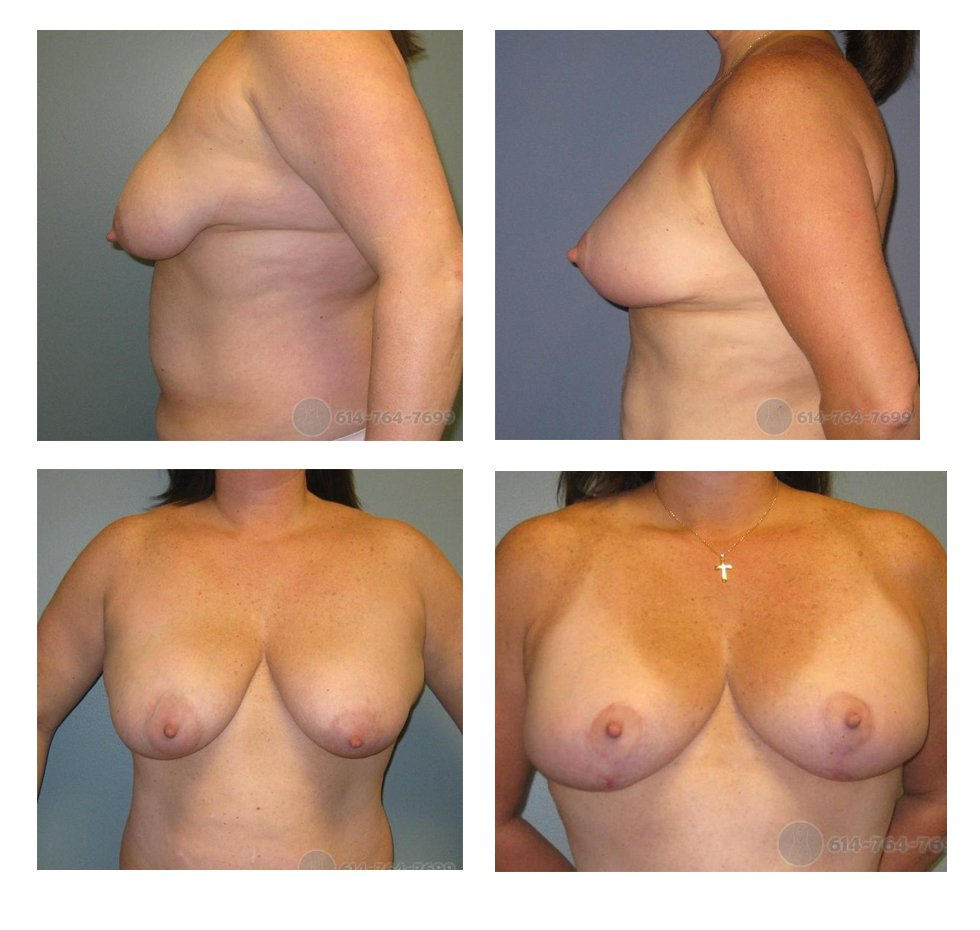 Before and 3 months after Wise pattern Mastopexy (Anchor Scar)
