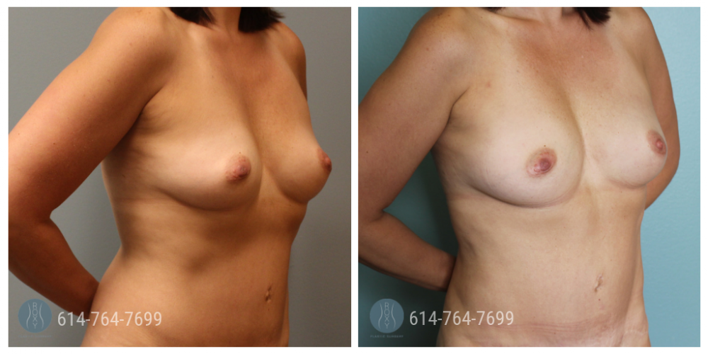 6 weeks after fat transfer breast augmentation.