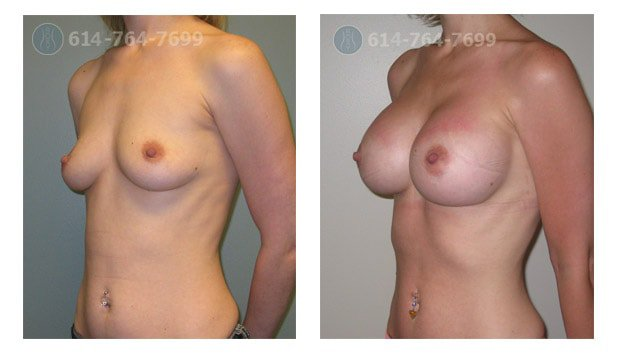 Age: 26  - Before Cup: 34AA - After Cup: 34D - Post Op Photo: 2 mo - Implant Size: 500 cc Silicone - Height/Weight: 5'5″/113 lbs