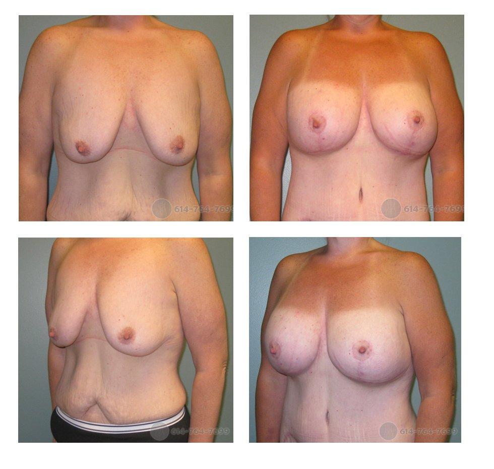 Pre-op and 6 months after Augmentation Mastopexy  Anchor Scar (Wise Pattern Breast Lift)   - 500cc Silicone Implants