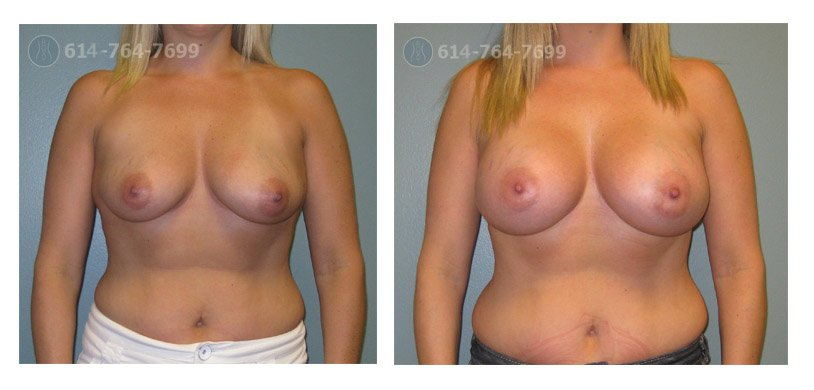 Age: 36 - Before Cup: 34C - After Cup: 34D - Post Op Photo: 3 mo - Implant Size: 475 cc Silicone - Height/Weight: 5'5″/140 lbs