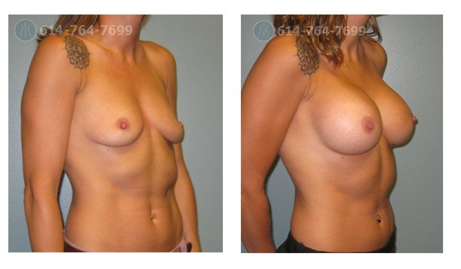 Age: 38 - Before Cup: 34B - After Cup: 34D - Post Op Photo: 6 weeks - Implant Size: 400 cc Silicone - Height/Weight: 5'5″/126 lbs.