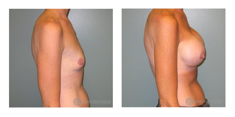 Age: 37 - Before Cup: 36AA - After Cup: 36D - Post Op Photo: 12 wks - Implant Size: 450 cc Silicone - Height/Weight: 5'8″/123 lbs