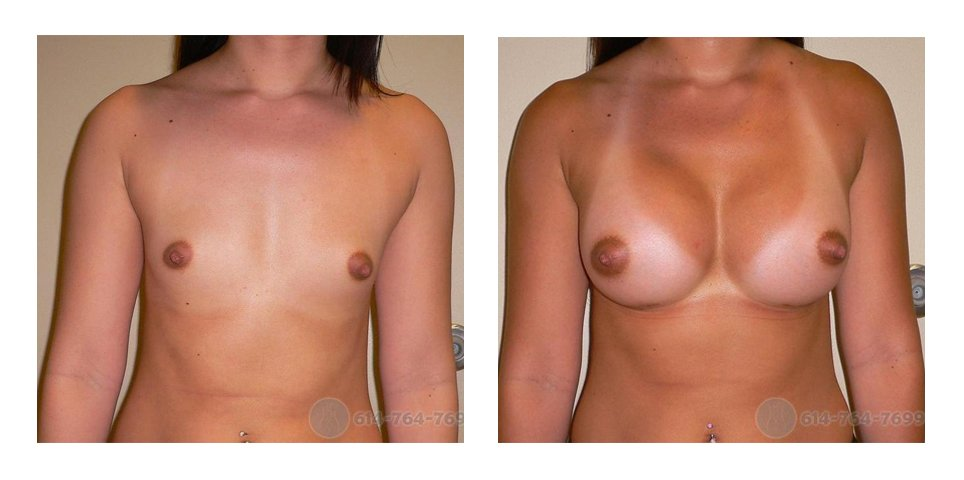 Age: 28 - Org Cup: 34A - Cup Now: 34C - Post Op Photo: 6 wks - Implant Size: 350 cc Silicone - Height/Weight: 5′ 6″/140 lbs.