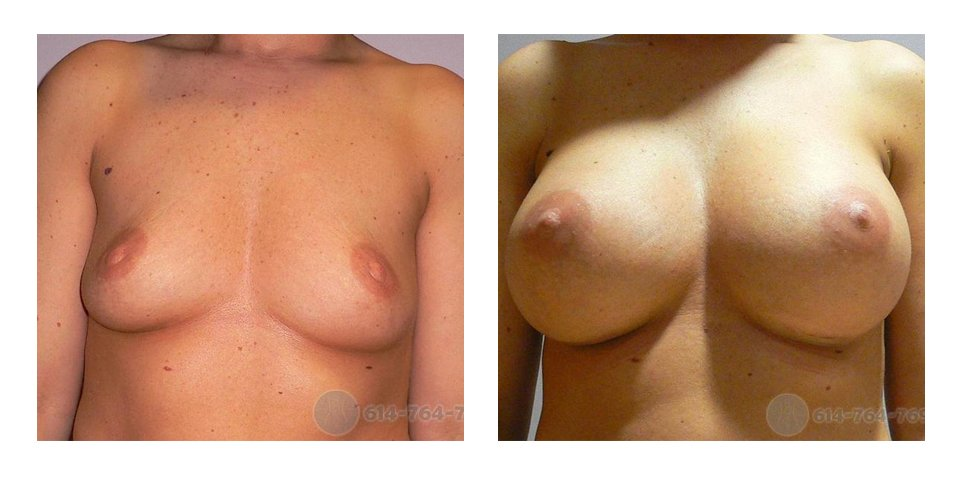 Age: 38 - Before Cup: 36B - After Cup: 36D - Post Op Photo: 12 wks - Implant Size: 450 cc Silicone - Height/Weight: 5′ 0″/118 lbs
