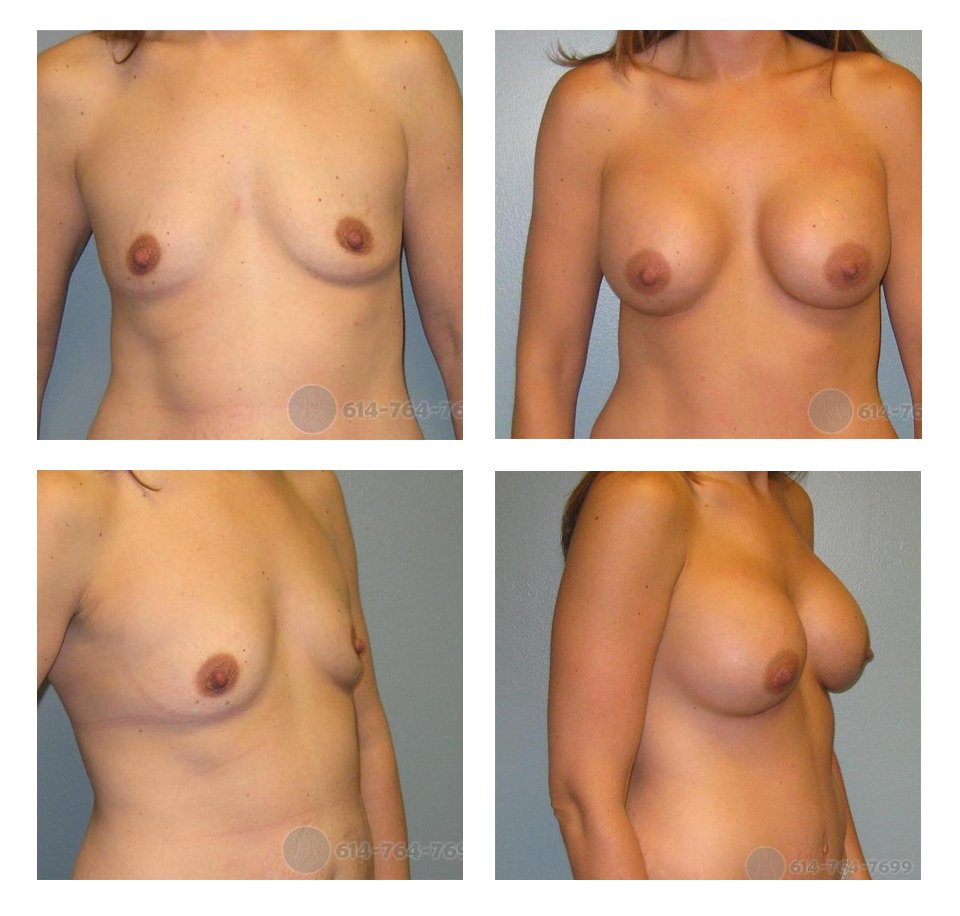 Age: 37- Before Cup: 36B - After Cup: 36D - Post Op Photo: 6 wks - Implant Size: 475 cc Silicone - Height/Weight: 5'10″/160 lbs