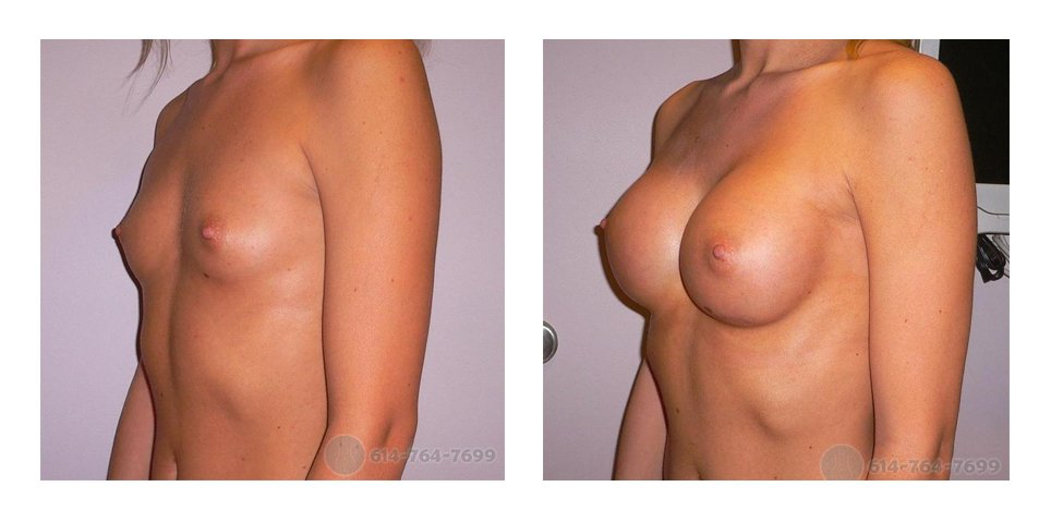 Age: 23 - Before Cup: 32A - After Cup: 32C - Post Op Photo: 300 - Implant Size: 300 cc Silicone - Height/Weight: 5'3″/110 lbs.